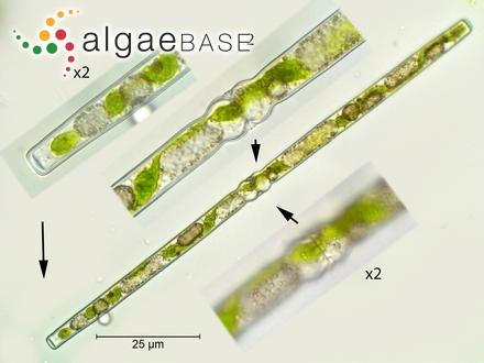 Psammothidium abundans f. rosenstockii (Lange-Bertalot) Bukhtiyarova